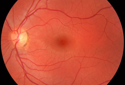 Healthy Retina? Find out here