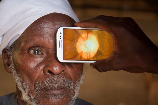 Mobile Adaptor Promises Faster Cheaper Eye Health