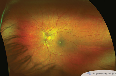 NEW!! Leading Retinal Scanning Technology
