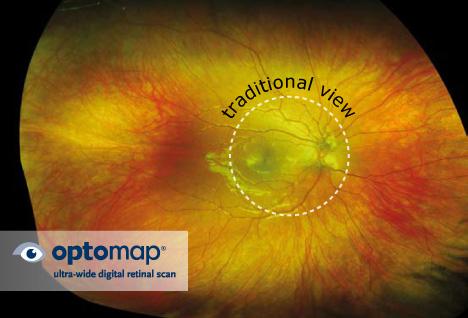Optomap Retinal Imaging